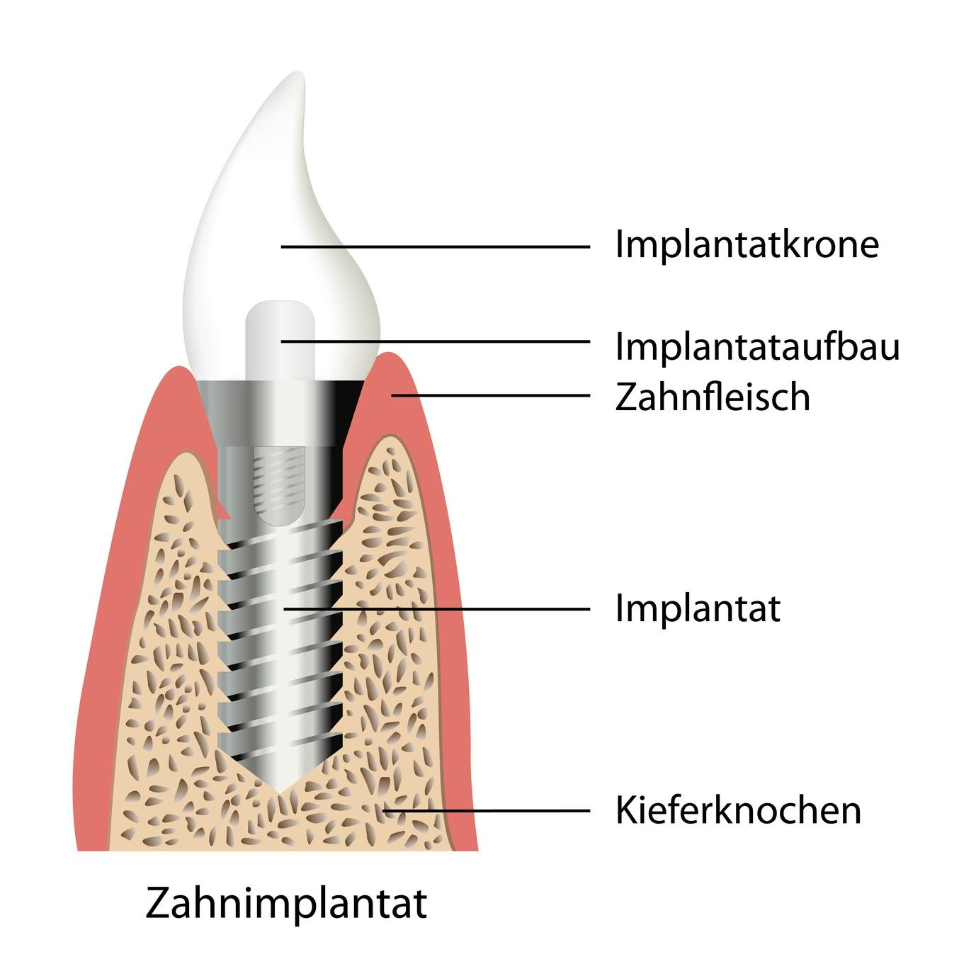 Aufbau eines Implantats