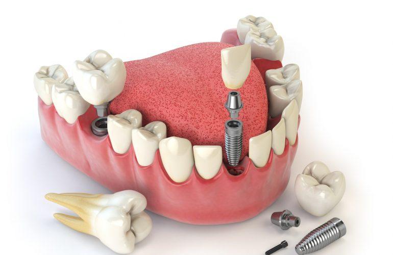 Behandlungsmöglichkeiten bei Zahnverlust