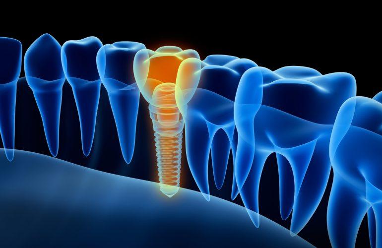Weitere Leistungen der Oralchirurgie
