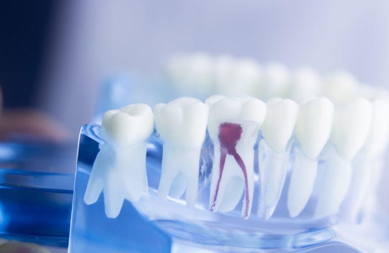 Common Signs of a Dental Fistula