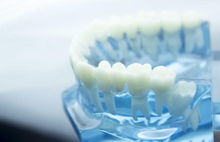 Was macht ein Parodontologe?