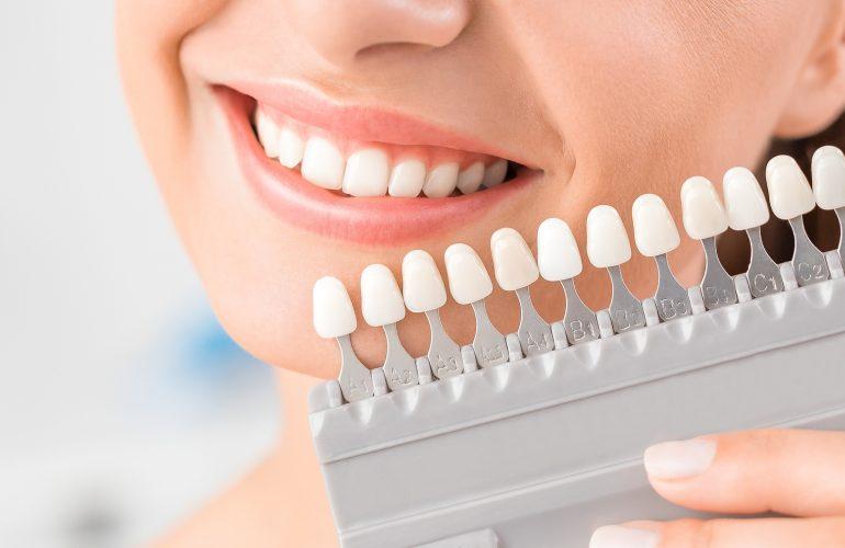 Vorteile und Nachteile von Zahnkronen