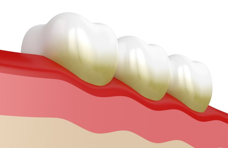 Ursachen für Zahnstein