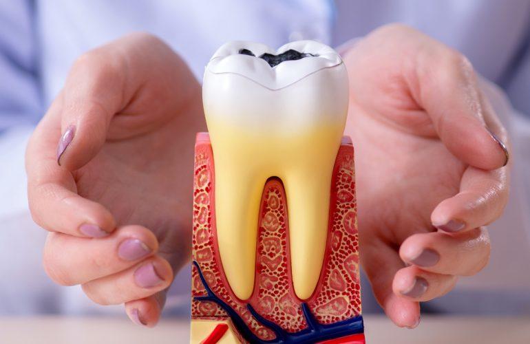 Was ist eine Parodontitis?