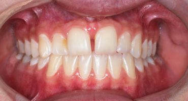 Zahn- und Kieferfehlstellungen