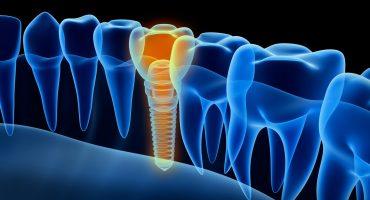 Dentale Volumentomographie (DVT)