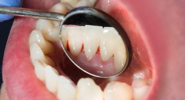 Zahnbelag (Plaque)