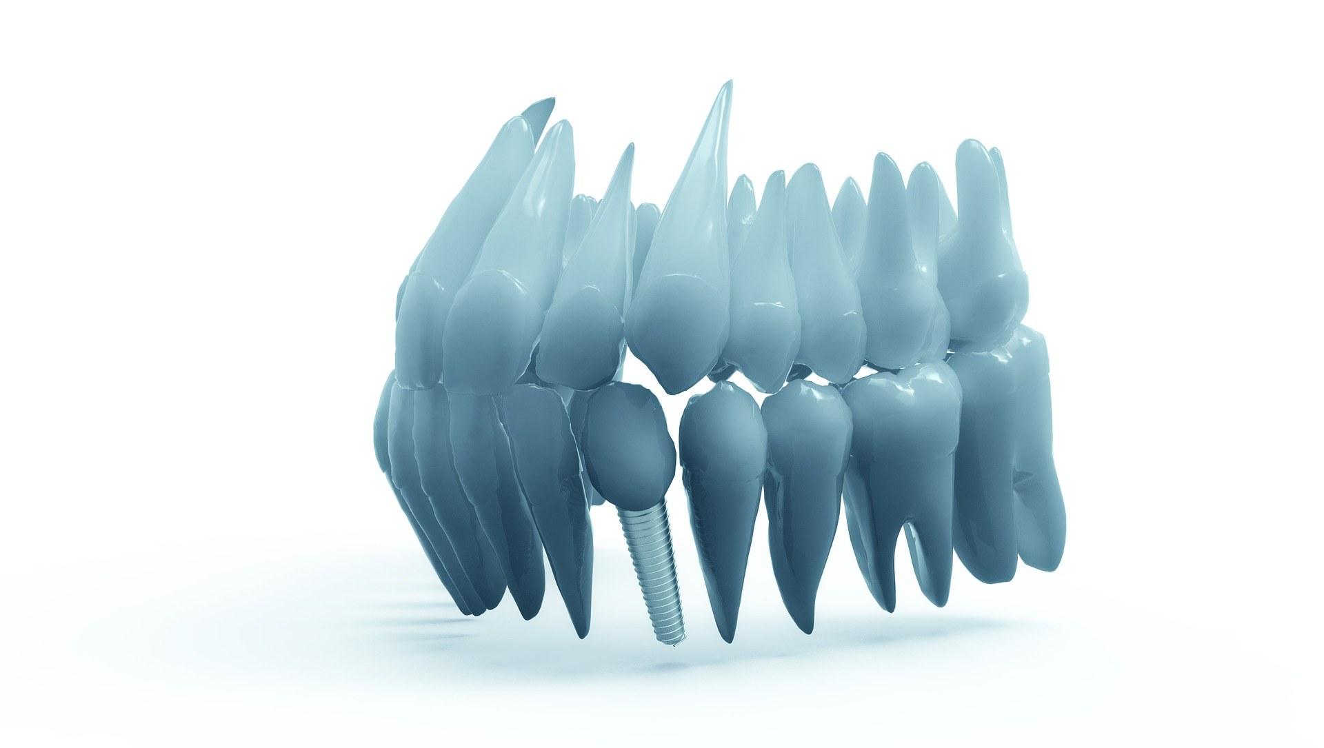Implantate: Mikrotechnologie verbessert Heilungsprozess